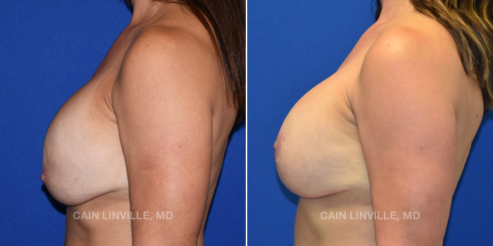 Breast Lift Before And After Patient 13C