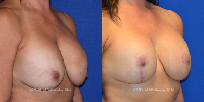 Breast Lift Before And After Patient 13D