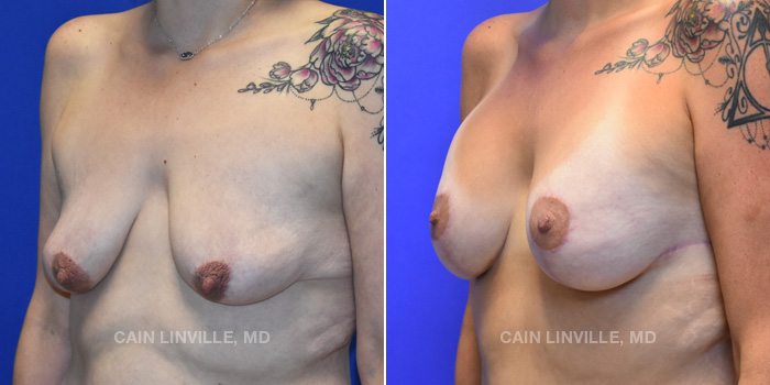 Breast Lift Before And After Patient 14B