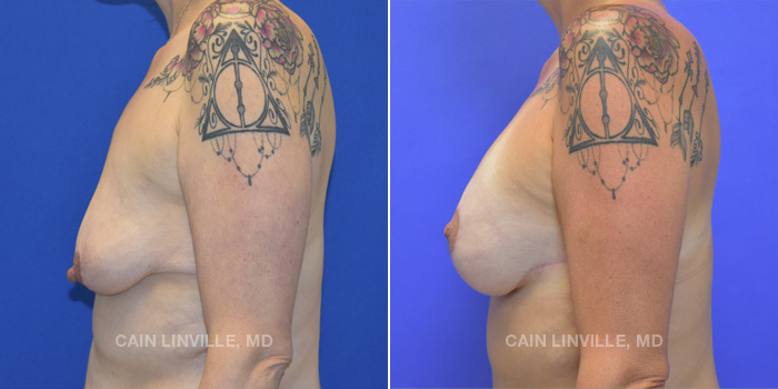 Breast Lift Before And After Patient 14C