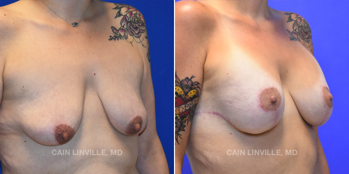 Breast Lift Before And After Patient 14D