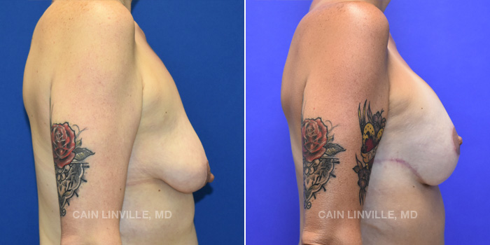 Breast Lift Before And After Patient 14E