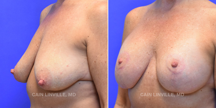 Breast Lift Before And After Patient 15B