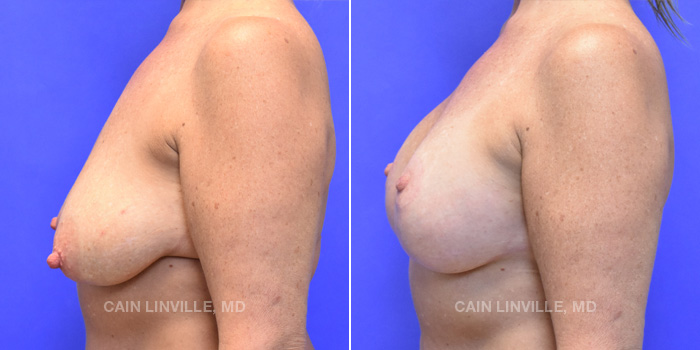 Breast Lift Before And After Patient 15C