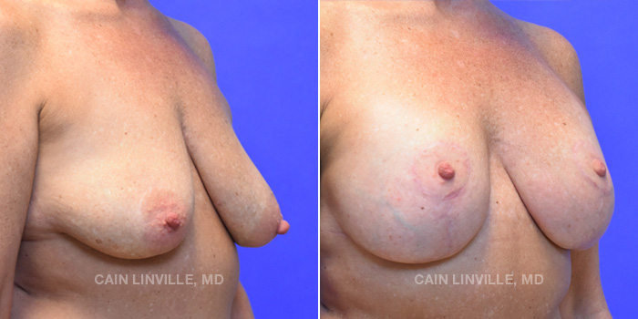 Breast Lift Before And After Patient 15D