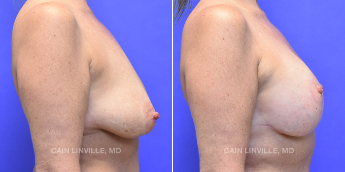 Breast Lift Before And After Patient 15E