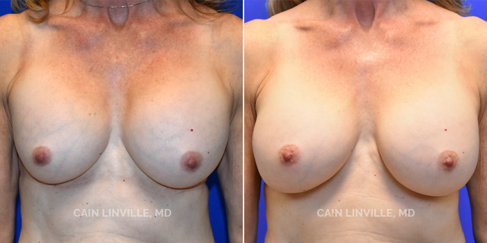 Breast Revision Before And After Patient 2A