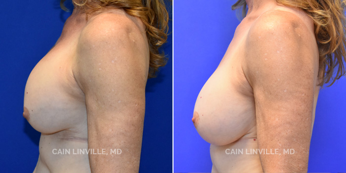 Breast Revision Before And After Patient 2B