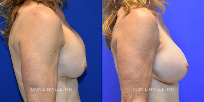 Breast Revision Before And After Patient 2C