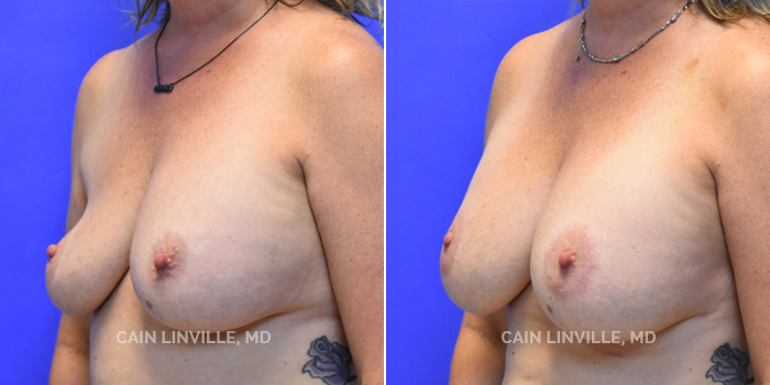 Breast Revision Before And After Patient 3B