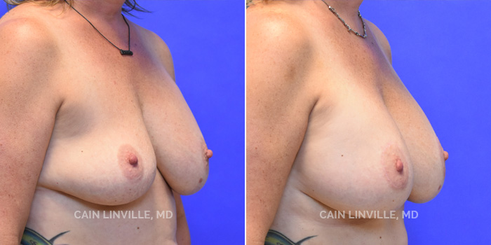 Breast Revision Before And After Patient 3D