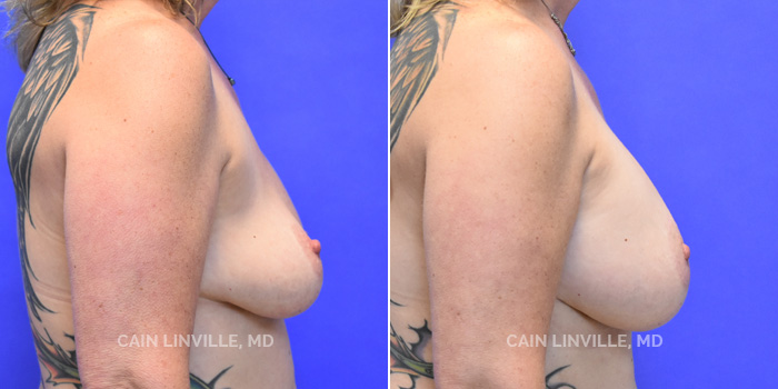Breast Revision Before And After Patient 3E