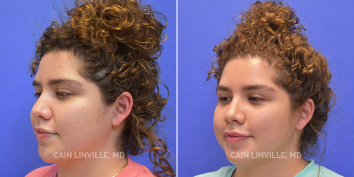 FaceTite Before And After Patient 2A