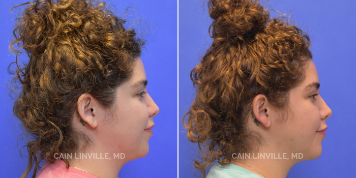 FaceTite Before And After Patient 2D