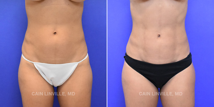 Lipo Etching Before And After Patient 2A