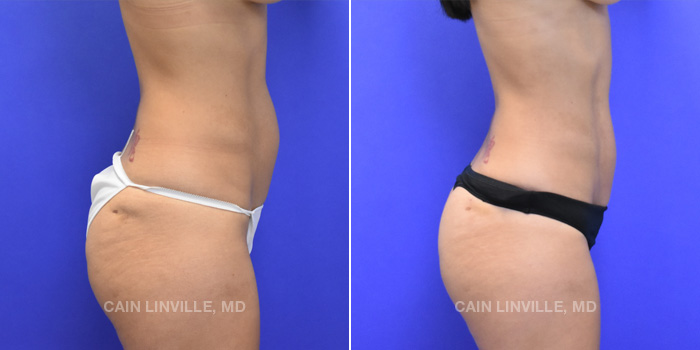Lipo Etching Before And After Patient 2B