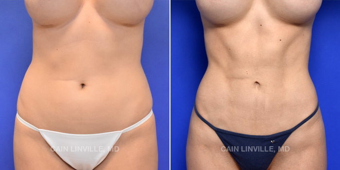 Lipo Etching Before And After Patient 3A