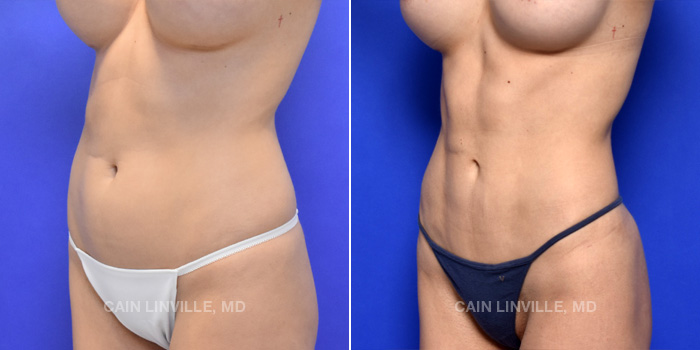 Lipo Etching Before And After Patient 3B