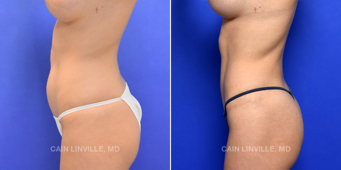 Lipo Etching Before And After Patient 3C