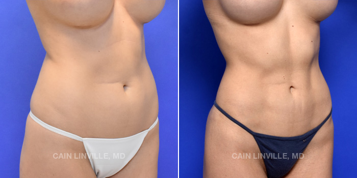 Lipo Etching Before And After Patient 3D