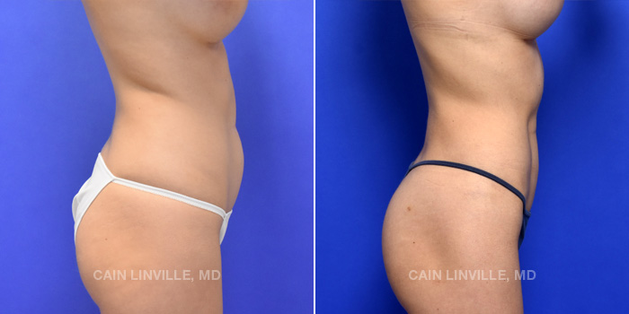 Lipo Etching Before And After Patient 3E