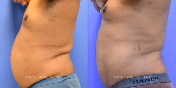 Lipo Etching Before And After Patient 4B