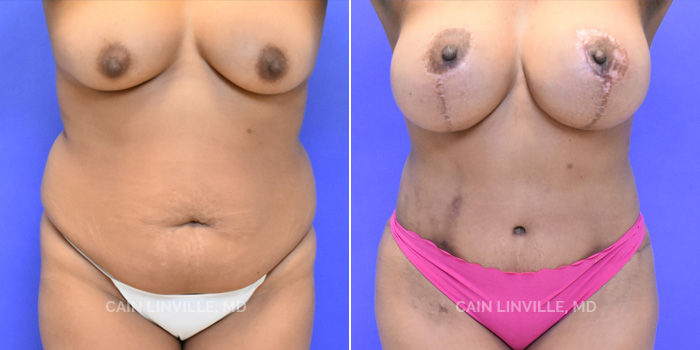 Mommy Makeover Before And After Patient 8A