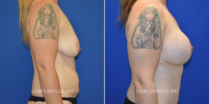 Mommy Makeover Before And After Patient 10C
