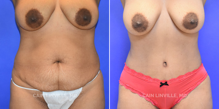 Tummy Tuck Before And After Patient 41A