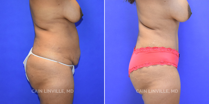 Tummy Tuck Before And After Patient 41B