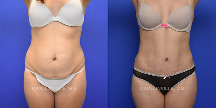 Tummy Tuck Before And After Patient 42A