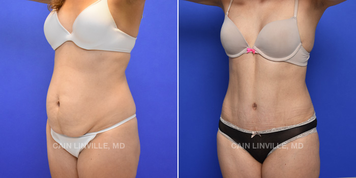 Tummy Tuck Before And After Patient 42B