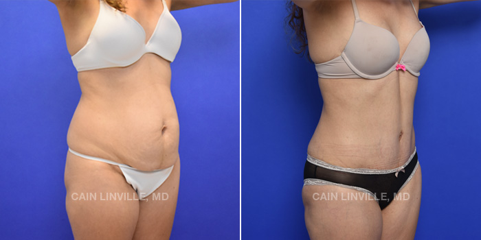 Tummy Tuck Before And After Patient 42D