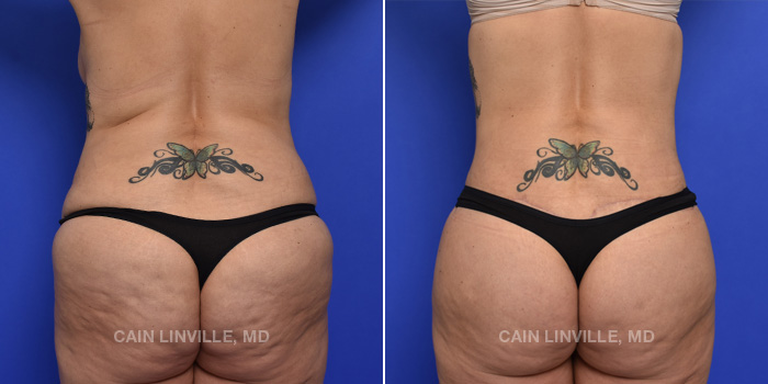 Brazilian Butt Lift Before And After Patient 13A