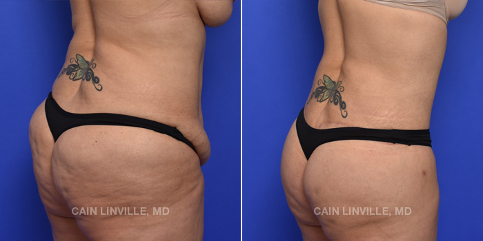 Brazilian Butt Lift Before And After Patient 13B