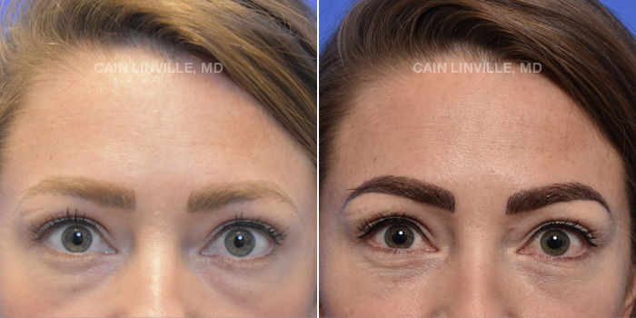 Blepharoplasty Before And After Patient 1A
