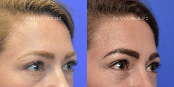 Blepharoplasty Before And After Patient 1C