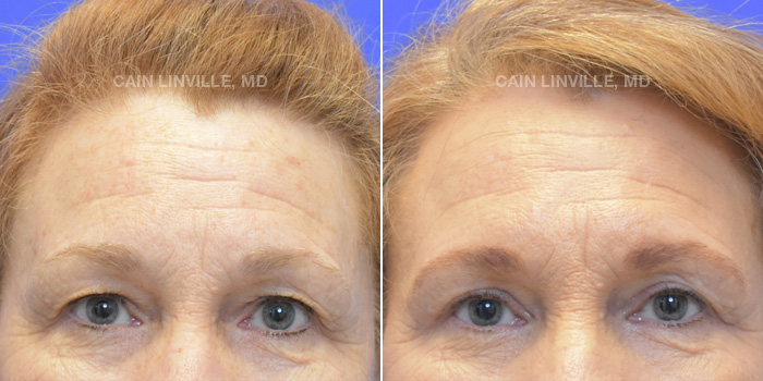 Blepharoplasty Before And After Patient 2