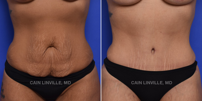 Tummy Tuck Before And After Patient 43A