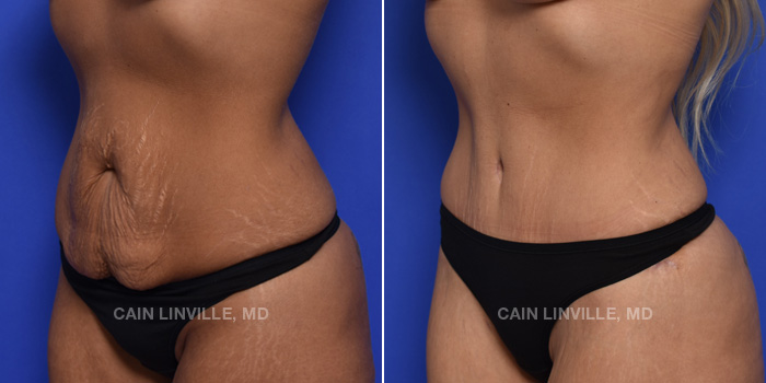 Tummy Tuck Before And After Patient 43B