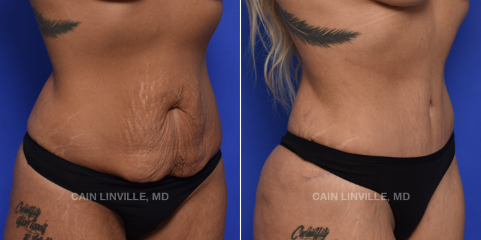 Tummy Tuck Before And After Patient 43C