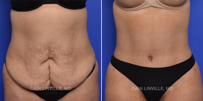 Tummy Tuck Before And After Patient 1A