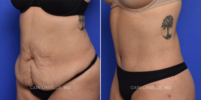 Tummy Tuck Before And After Patient 1B