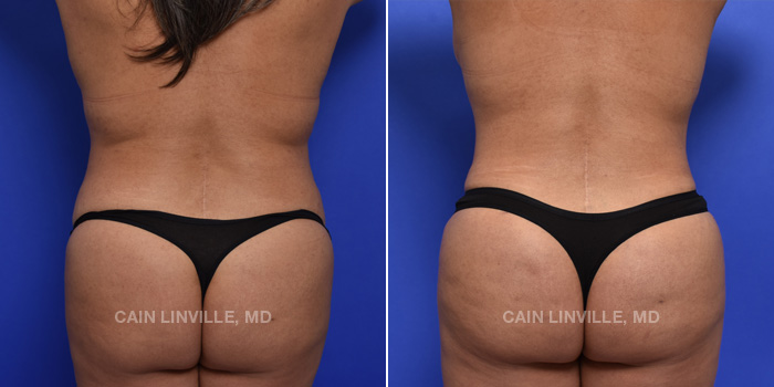 Brazilian Butt Lift Before And After Patient 14A