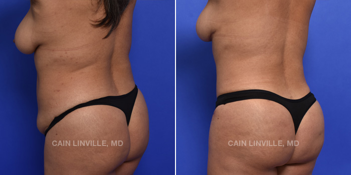 Brazilian Butt Lift Before And After Patient 14B