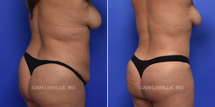 Brazilian Butt Lift Before And After Patient 14C