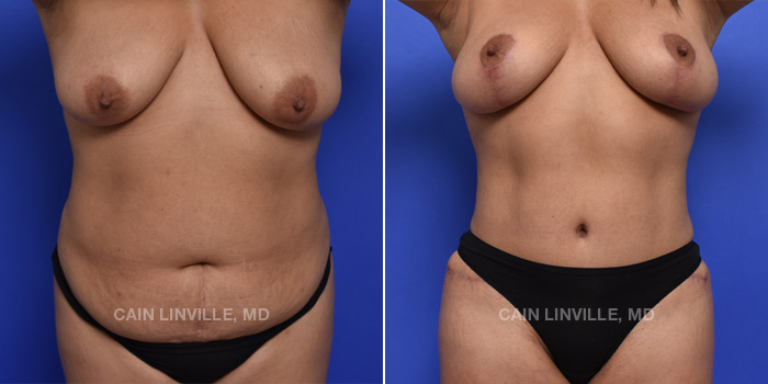 Tummy Tuck Before And After Patient 2A