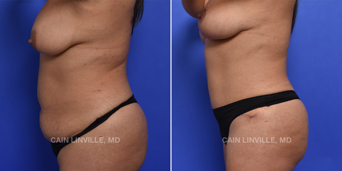 Tummy Tuck Before And After Patient 2C