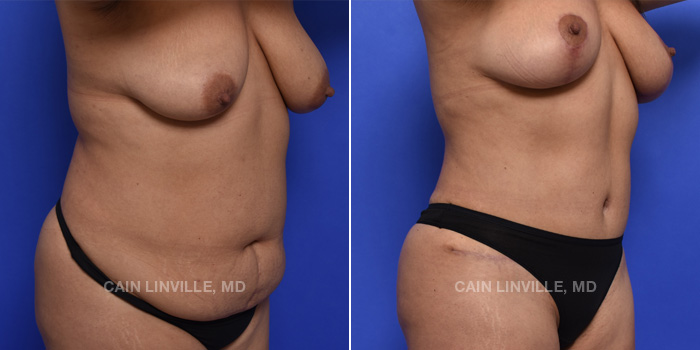 Tummy Tuck Before And After Patient 2D