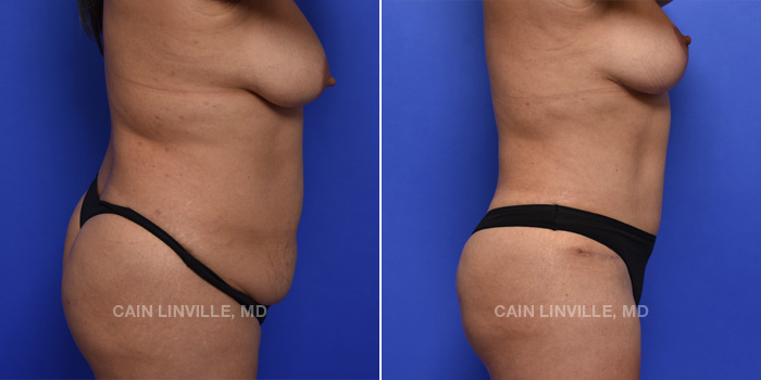 Tummy Tuck Before And After Patient 2E